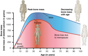 osteoporosi-radiobussola